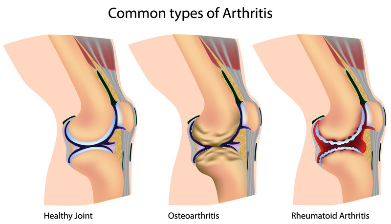 Arthritis Treatment Santa Monica