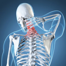 Neck Pain Clinic Fort Myers