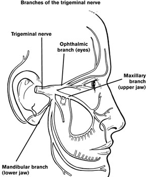 management of pain in trigeminal neuralgia Trigeminal neuralgia is a falls under the category of facial pain and is sometimes referred to as atypical facial pain the excruciating pain of trigeminal neuralgia originates in the trigeminal nerve.