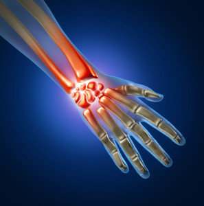 Carpal Tunnel Syndrome Treatment Fort Myers