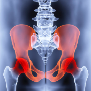 Pelvic Pain Treatment Fort Myers