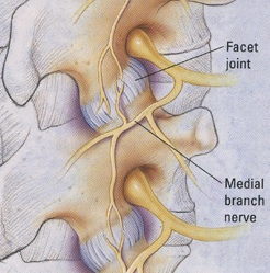 facet joint radiofrequency nerve ablation